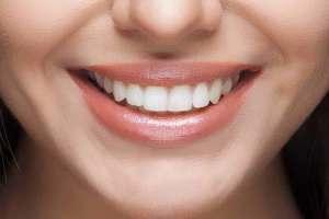 Evde anında doğal diş beyazlatma yöntemleri